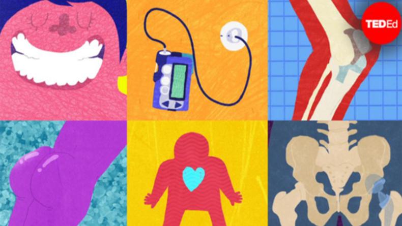 Öğrenci Kariyeri - Teknoloji & Bilim, Gündem: İmplantlara Karşı Vücudumuz Ne Tepki Verir?