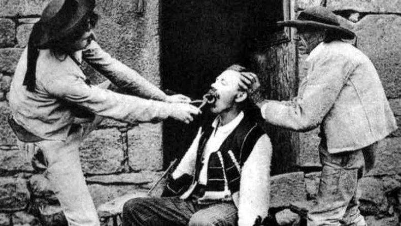 Tarihteki Korkunç Tedavi Yöntemleri